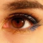 Amberkleurige ogen: wolfsogen bij mensen